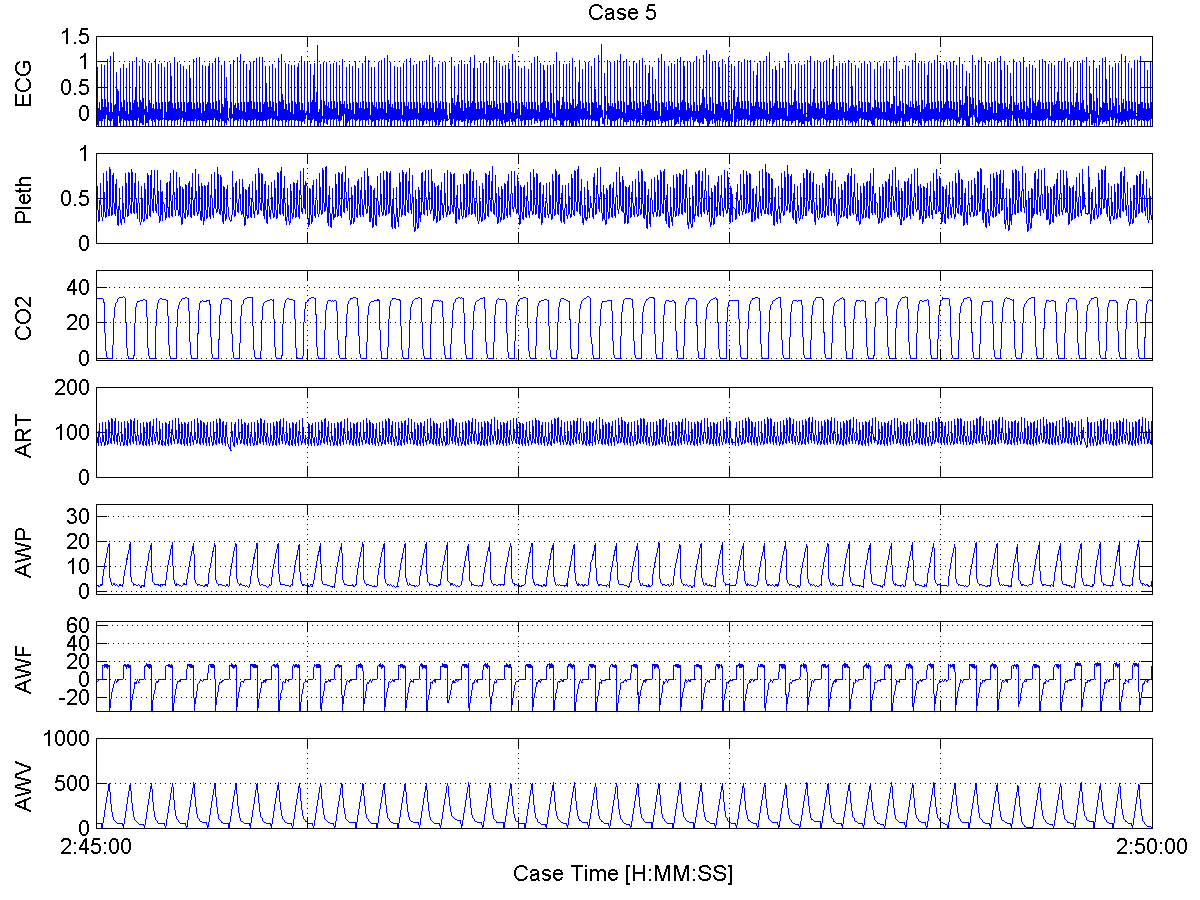 Case 5 - Waveform Plots - 300 second plots