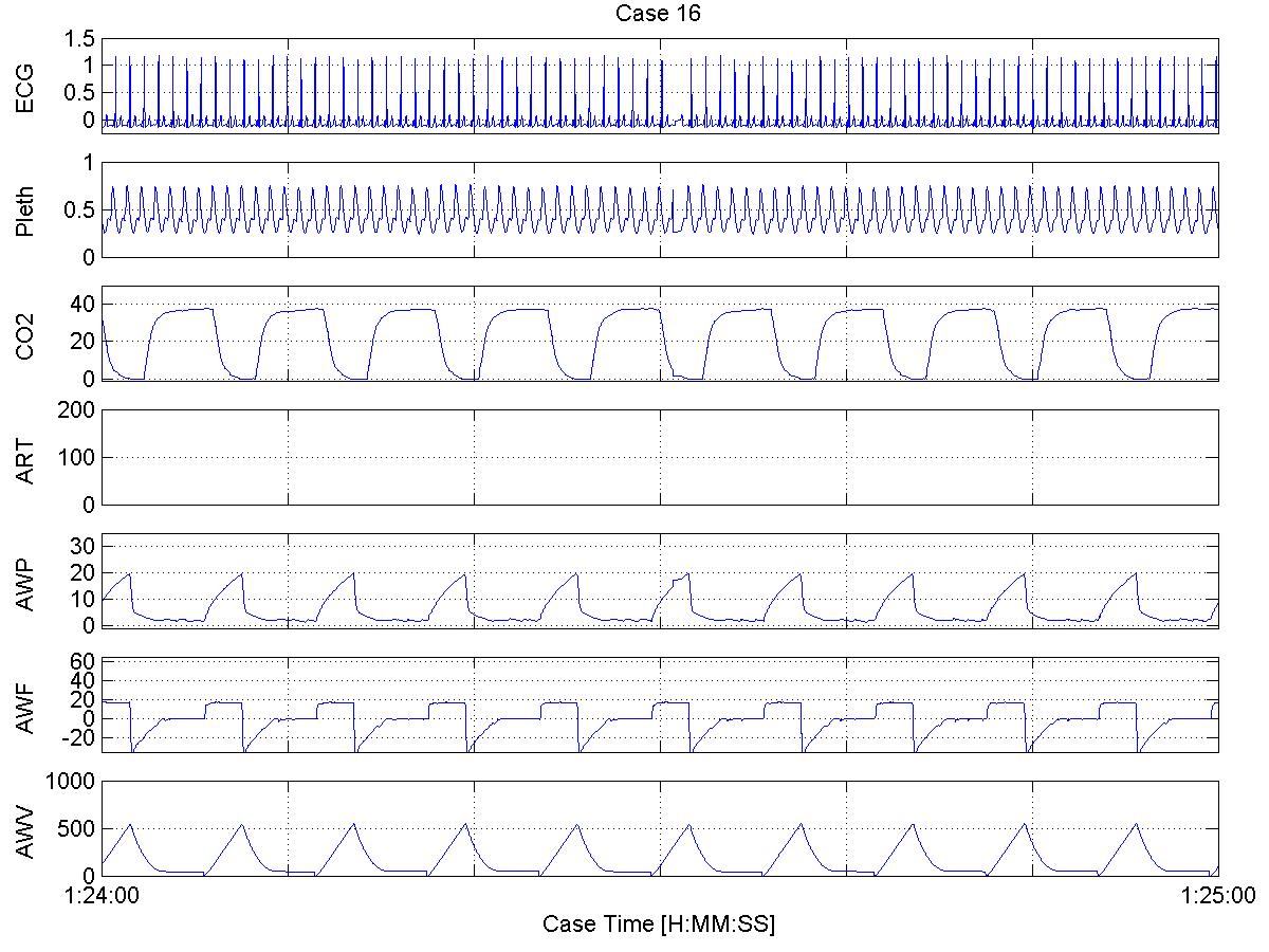 Case 16 - Waveform Plots - 60 second plots
